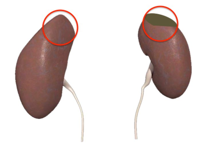 7 Important Facts About Kidney Cancer