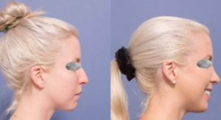Why is Revision RhinoplastyTougher?