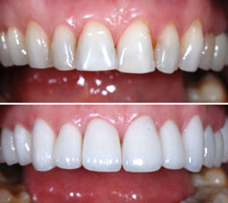 Dental Crowns, Teeth Caps