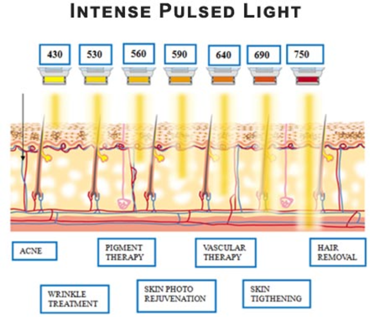 Intensed Pulsed Light