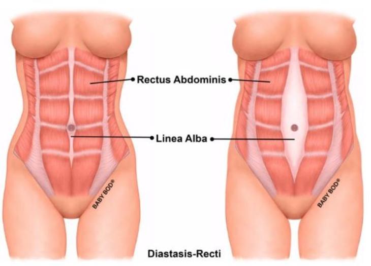 Diastasis Recti - Do's and Don'ts