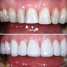 Broadway Family Dentistry is a top-rated cosmetic dentistry center.