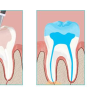 A root canal procedure is necessary for many teeth and is generally minimally uncomfortable for patients.