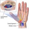 Wrist Injuries Treatment