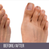 Foot & Ankle Surgeon in Midtown Manhattan & Upper East Side NYC