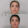 At City Facial Plastics, our goal is to help patients feel confident in their appearance.
