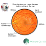Get better understanding about how high blood pressure can contribute to retinal diseases and conditions.