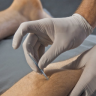 Are you unsure of exactly what dry-needling is? Or whether it is the right treatment for you? Let us provide you with answers to some of the most FAQ's we get!