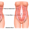 Diastasis recti occurs when the connective tissue in the abdominal wall thins and contributes to your rectus muscles (think 6-pack) moving away from the midline