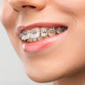 Amazing Smiles Orthodontics, we provide Invisalign queens for our teenage patients , it is used to correct a wide range of orthodontic problems.