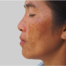 Melasma (chloasma) appears as symmetrical patches most often on the cheeks, chin, upper lip, and forehead.
