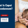 Caput succedaneum is a common condition that causes swelling around the skulls of newborn babies.
