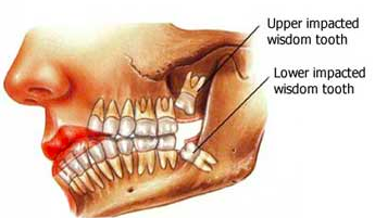 wisdom teeth, wisdom tooth, dentistry in waterloo