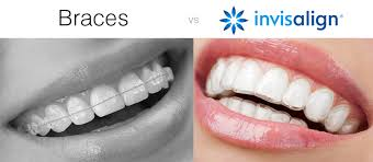 Byronwood Dental London, Invisalign
