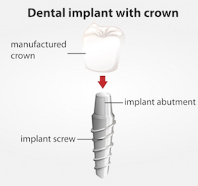 dental implant crown abutment screw manufactured crown