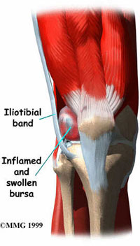 Poor Exercising Habits lead to Iliotibial Knee Pain
