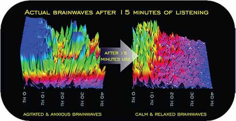 brainwaves after 15 minutes of listening, anxiety