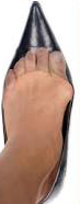 Chiropodist treating Bunions