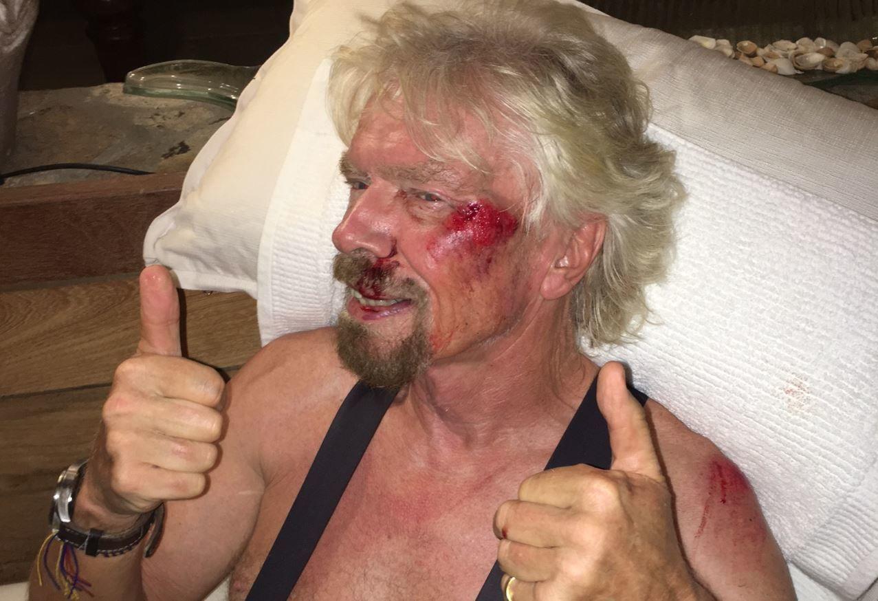 Richard Branson bike crash injury thumbs up