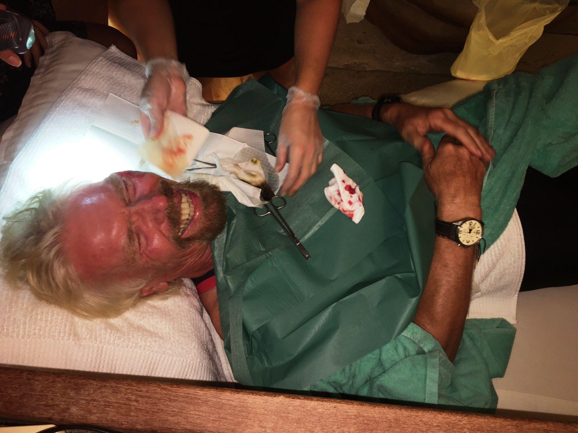 Richard Branson bike crash injury stitches