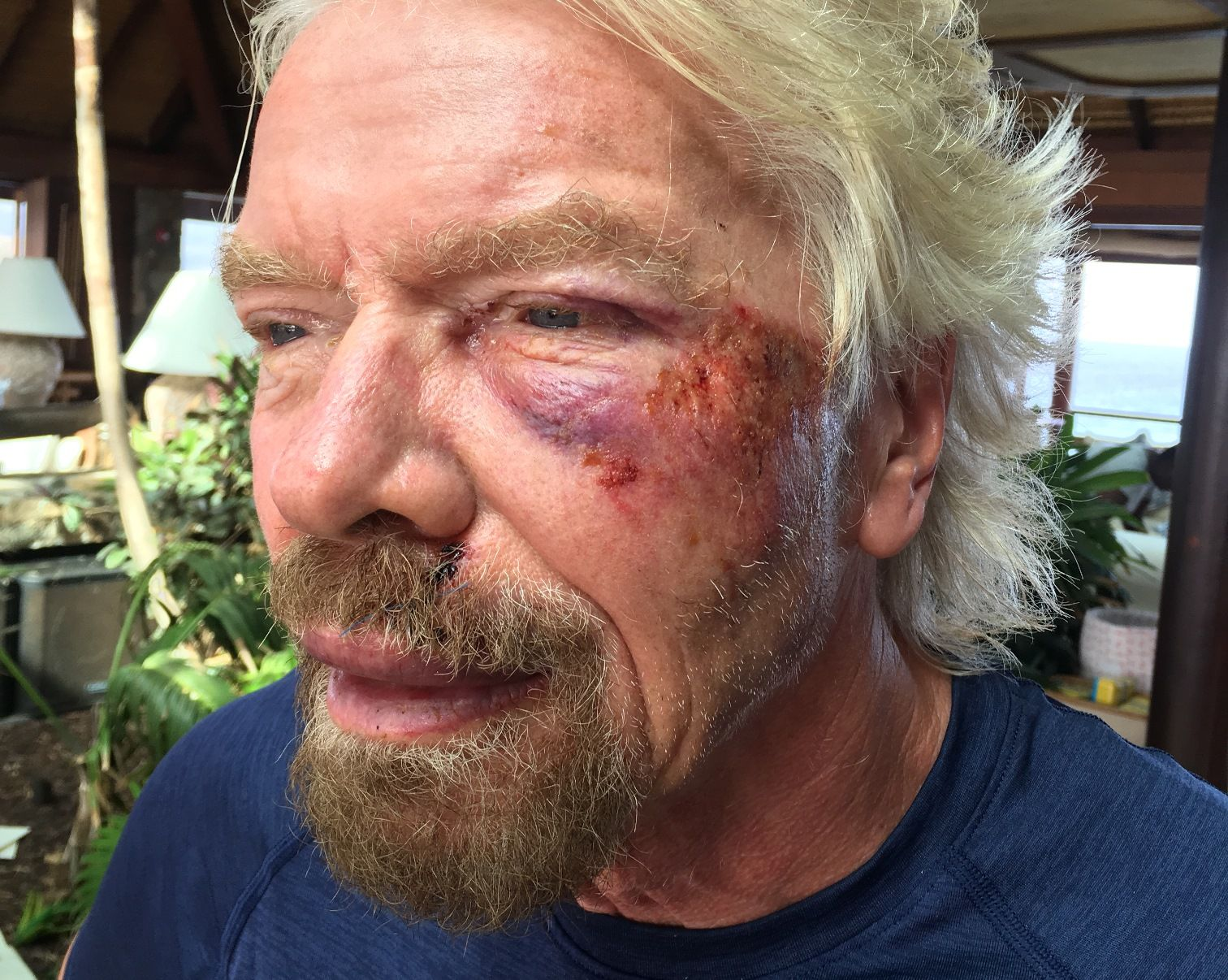 Richard Branson bike crash injury wound