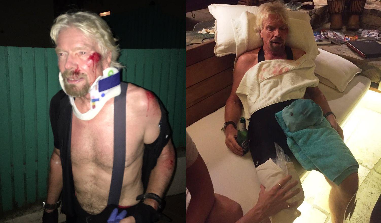 richard bike crash injuries