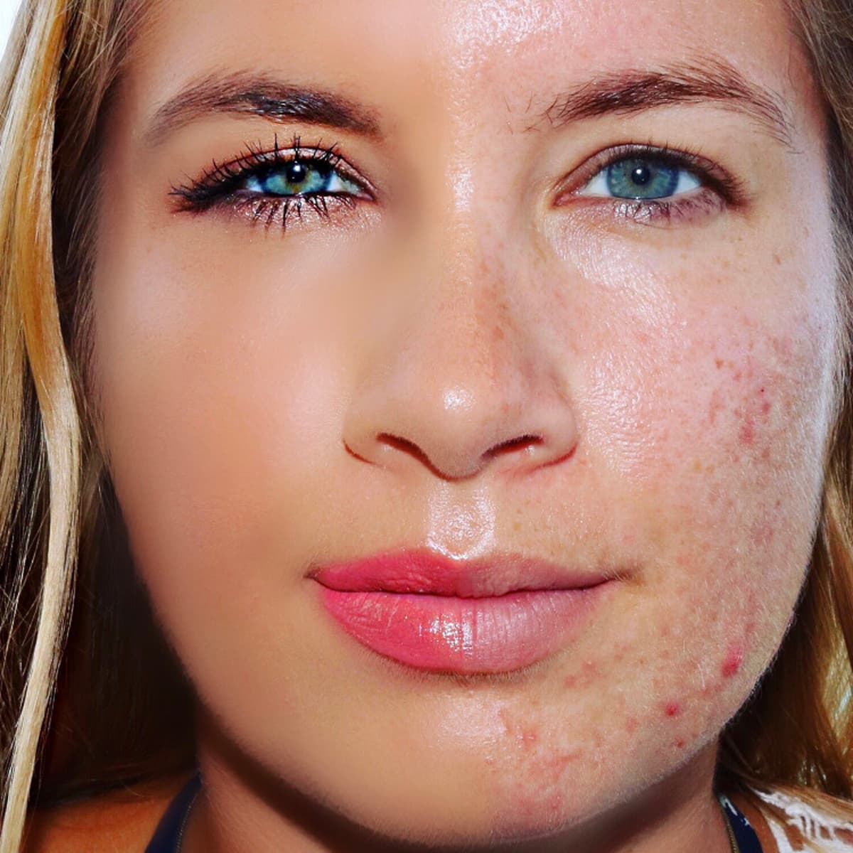 Tackling acne and insecurities   Virgin