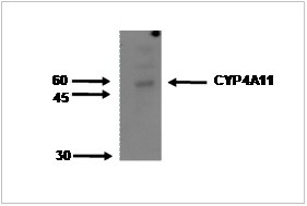 Image thumbnail for Anti-Cytochrome P450 4A11 [M25-P2A10]