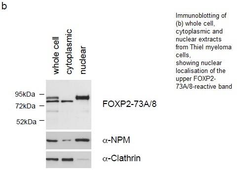 Image thumbnail for Anti-FOXP2 [73A/8]