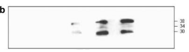 Image thumbnail for Anti-Metapneumovirus Phosphoprotein [hMPV33]