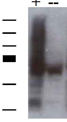 Image thumbnail for Anti-SNX27 [1C6]