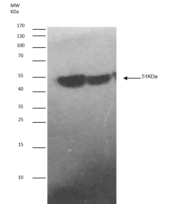 Image thumbnail for Anti-hnRNP-K (isoform1) [N10 P2D3*G2]