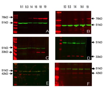 Image thumbnail for Anti-Deleted in azoospermia-like [DAZL3/11A]