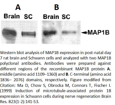 Image thumbnail for Anti-MAP1B, Polyclonal antibodies