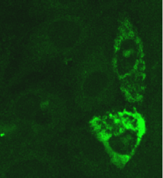 Image thumbnail for Anti-SARS Nucleocaspid [6H3]
