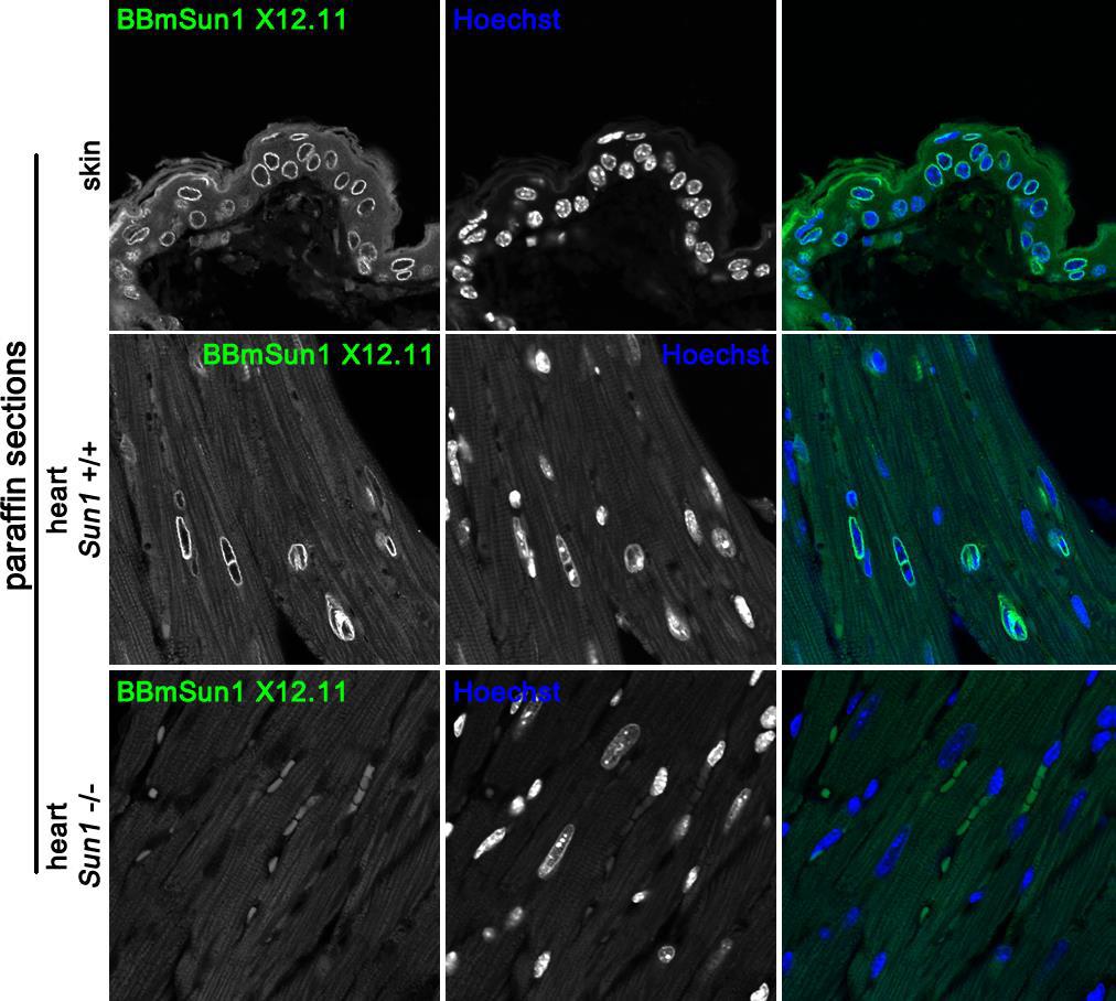 Image thumbnail for Anti-Sun1 [BBmSun1 X12.11] monoclonal antibody