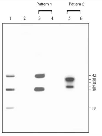 Image thumbnail for Anti-Metapneumovirus Nucleoprotein [hMPV123]
