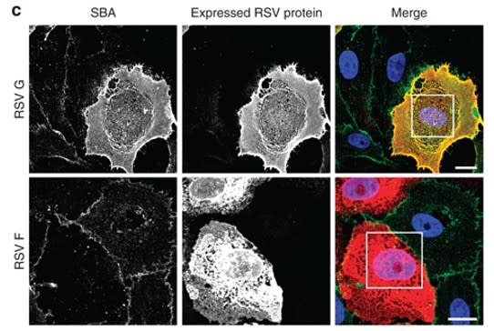 Image thumbnail for Anti-RSV F Glycoprotein [5A6]