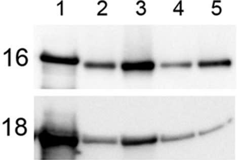 Image thumbnail for Anti-HPV16L1 [CamVir 1]