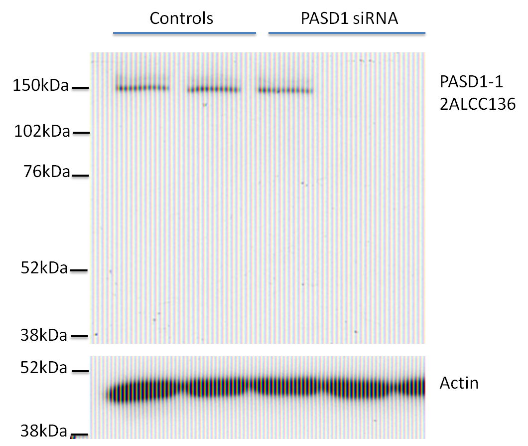 Image thumbnail for Anti-PASD1 [2ALCC136]
