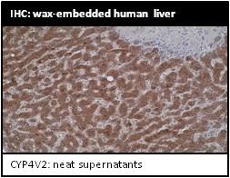 Image thumbnail for Anti-Cytochrome P450 4V2 [M29-P3B10]