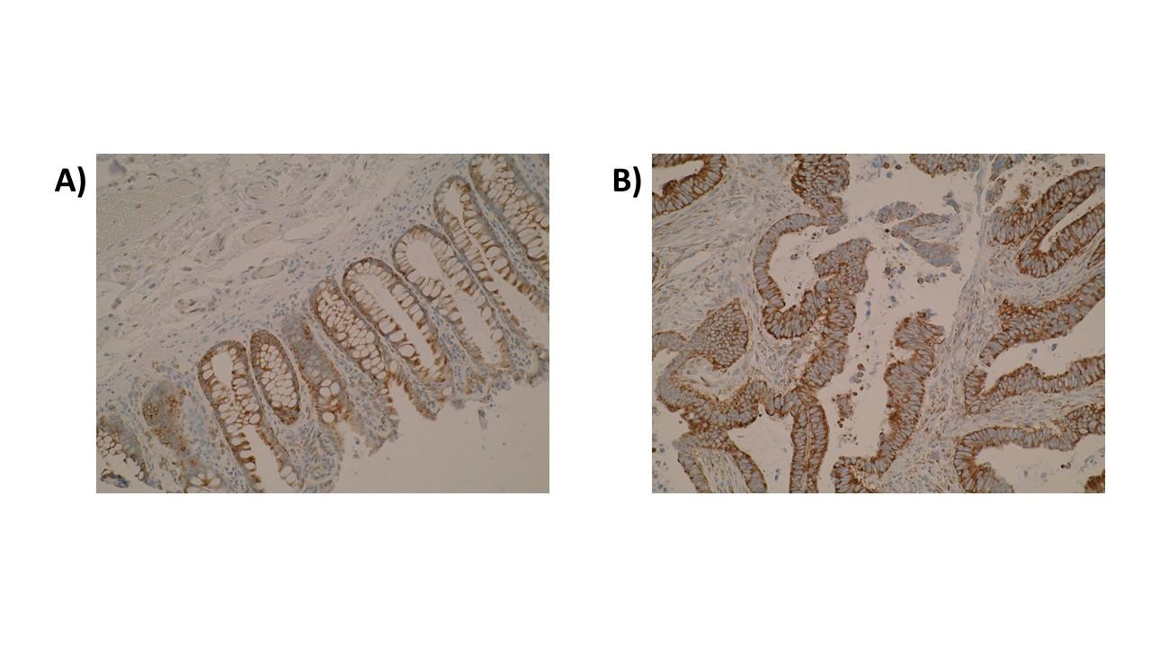 Image thumbnail for Anti-ELOVL3 [V61 P2B3*D10]