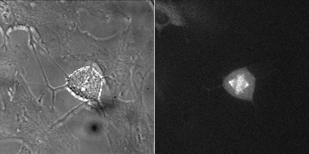 Image thumbnail for Cyclin B1-Venus Reporter Cell Line [RPE1 cycB1-venus/+ KI clone 20G11]