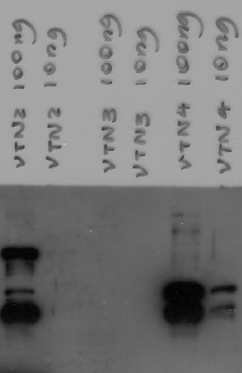 Image thumbnail for Anti-VTN2 [1A5]