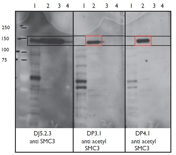 Image thumbnail for Anti-Acetyl SMC3 [DP3.1]