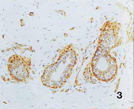 Image thumbnail for Anti-Integrin alpha 6 [MP4F10]