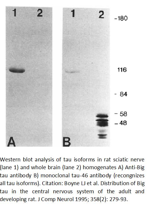Image thumbnail for Anti-Big (high-molecular-weight) tau, Polyclonal antibody
