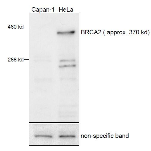 Image thumbnail for Anti-BRCA2, Polyclonal [MTA42]