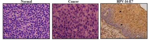 Image thumbnail for Anti-HPV16E7 [TVG 701Y]