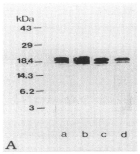 Image thumbnail for Anti-Myelin Basic Protein (region 36-50) [MBP14]